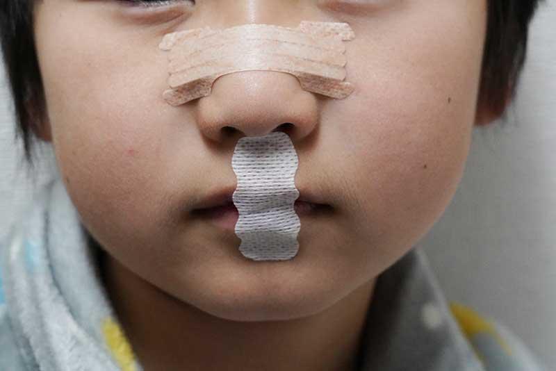 鼻呼吸テープを口に装着