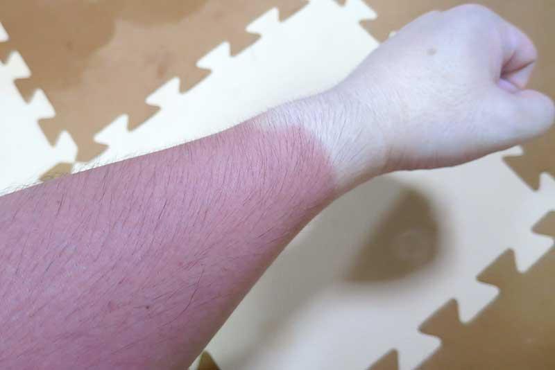 真っ赤に日焼けした腕